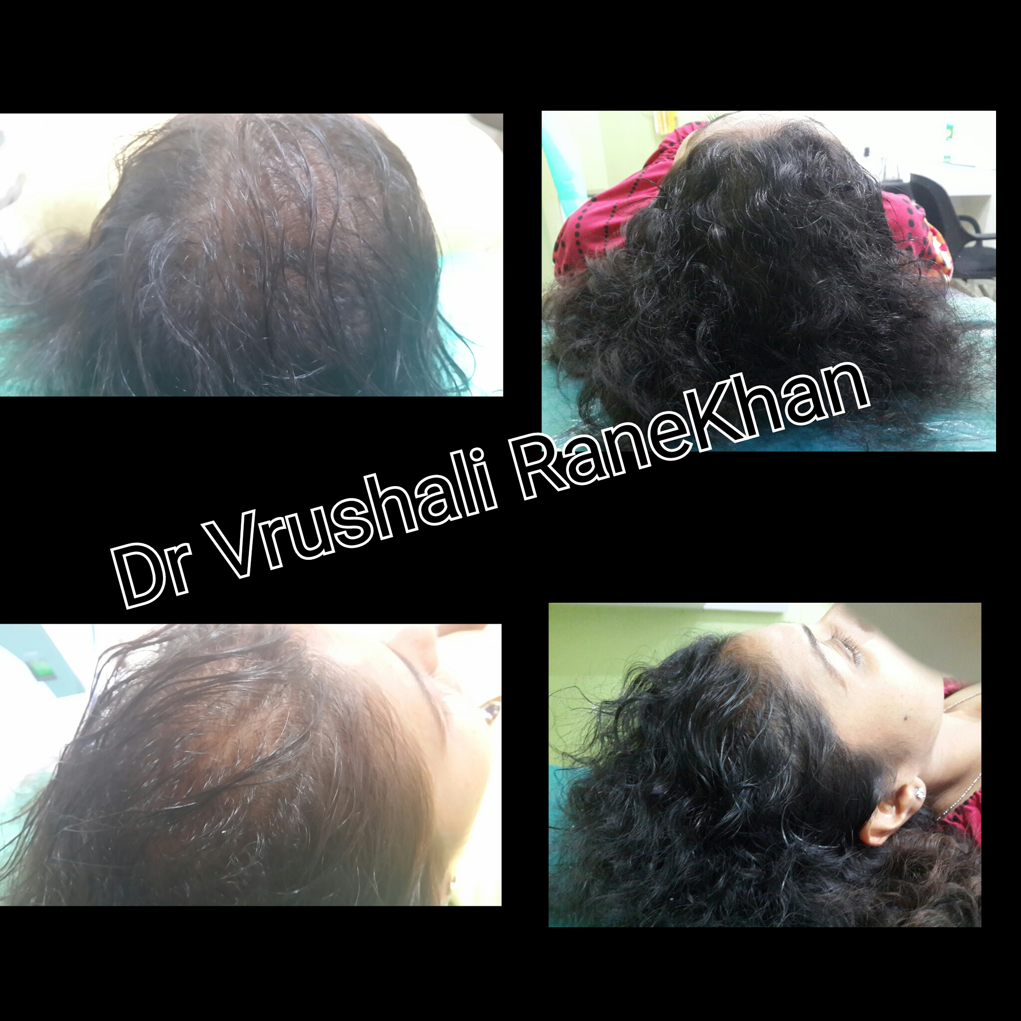 Hair regrowth in post bariatric loss
