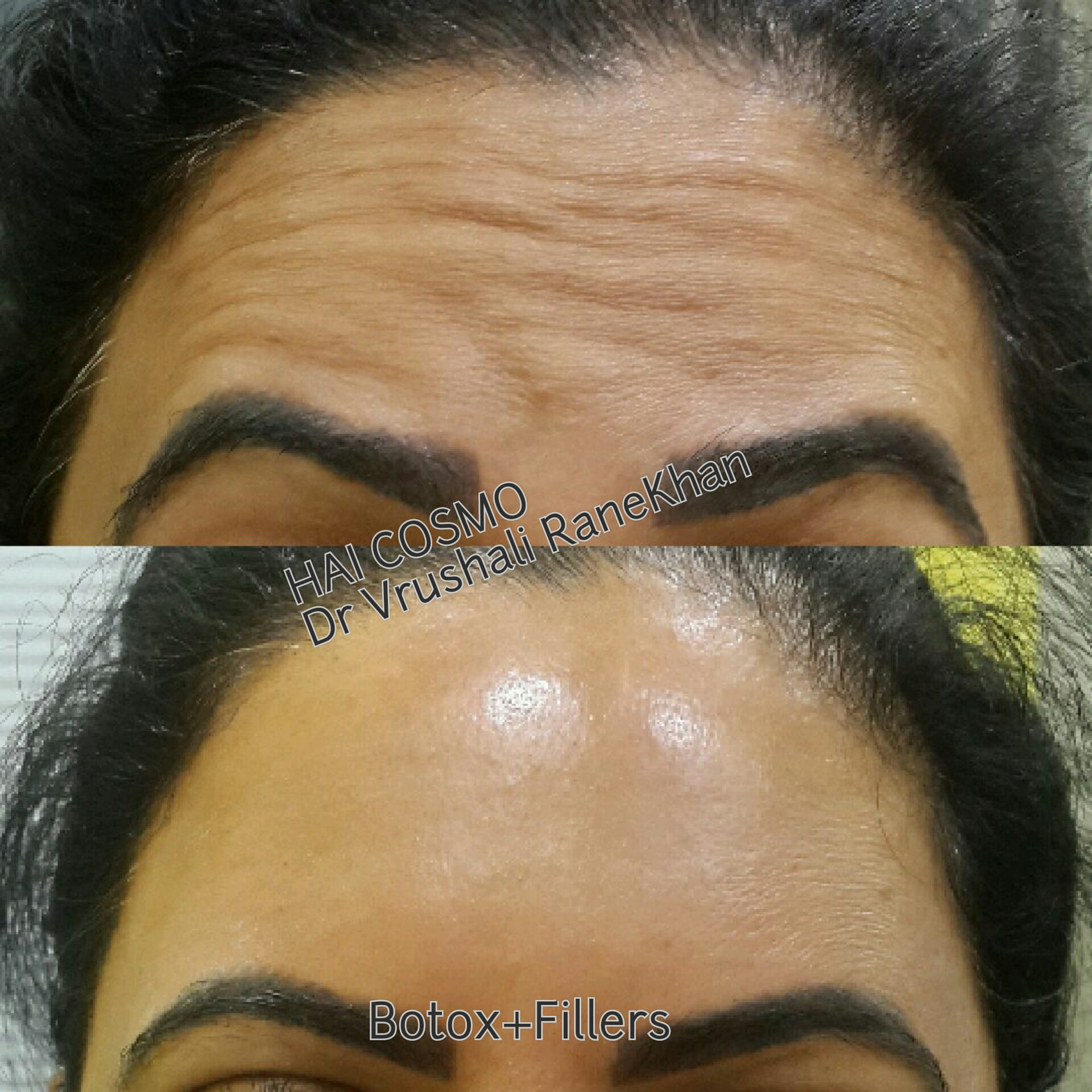 Forehead Rejuvenation - Botox&Fillers