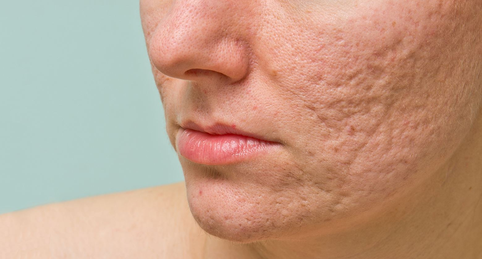 Acne Scar - Management Update