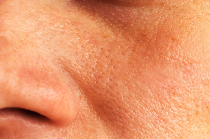 Open Pores - Cause and Management