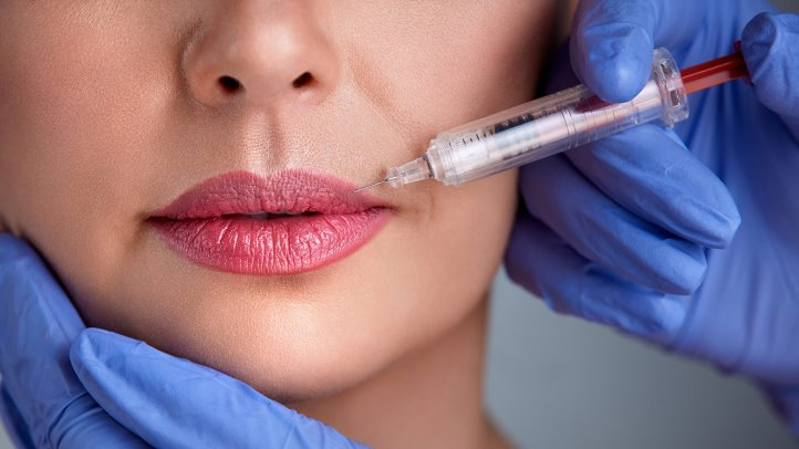5 REASONS TO DO LIP FILLERS