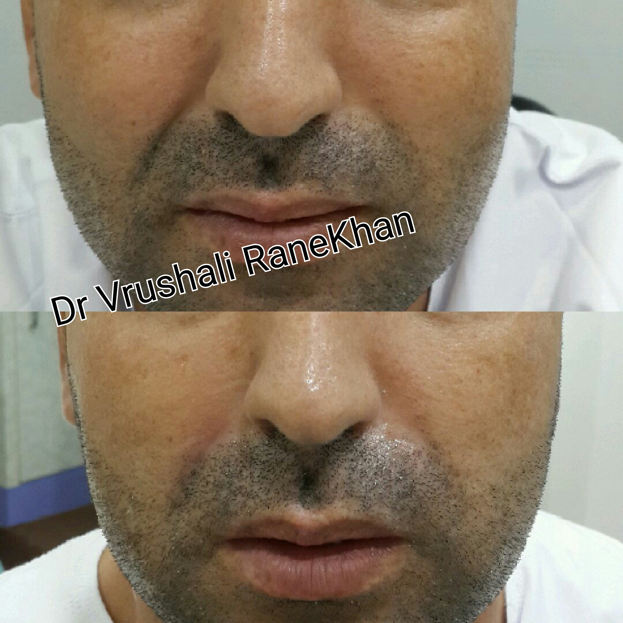 Nose Folds Filler
