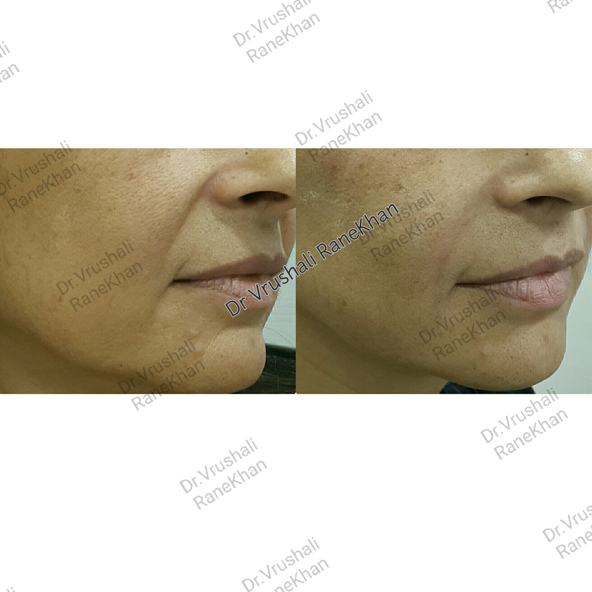 Nasolabial correction - filler