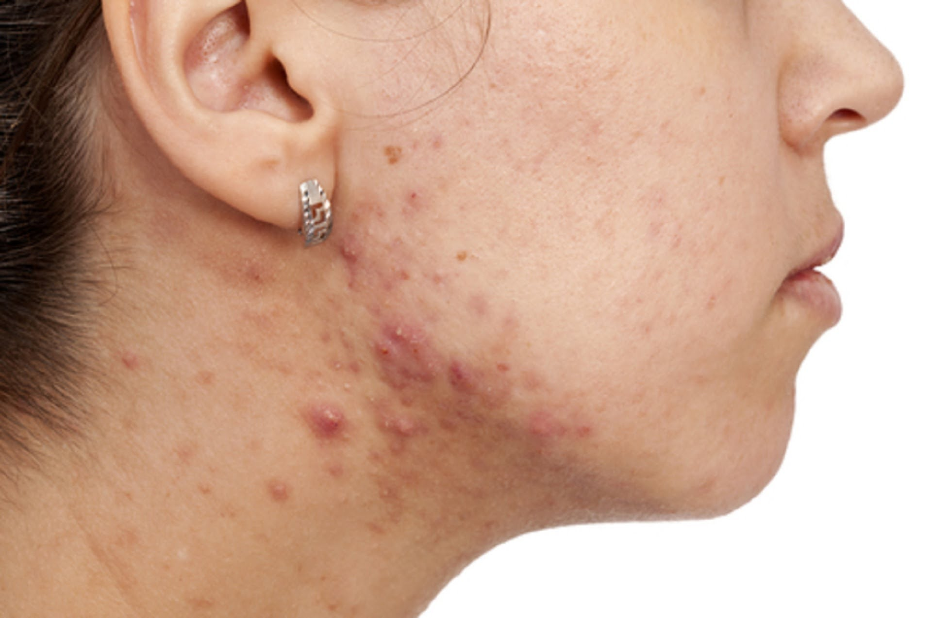 Adult Acne - Updates