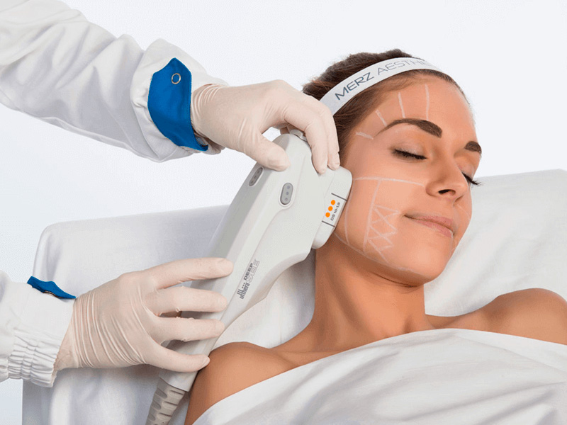 Face & Neck Lift HIFU